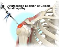 Arthroscopic-Excision-of-Calcific-Tendinopathy